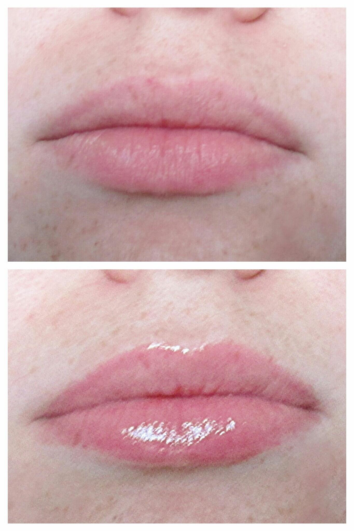 Trivelig Lip Gloss plumper anmeldelse Ownerlipco-8584